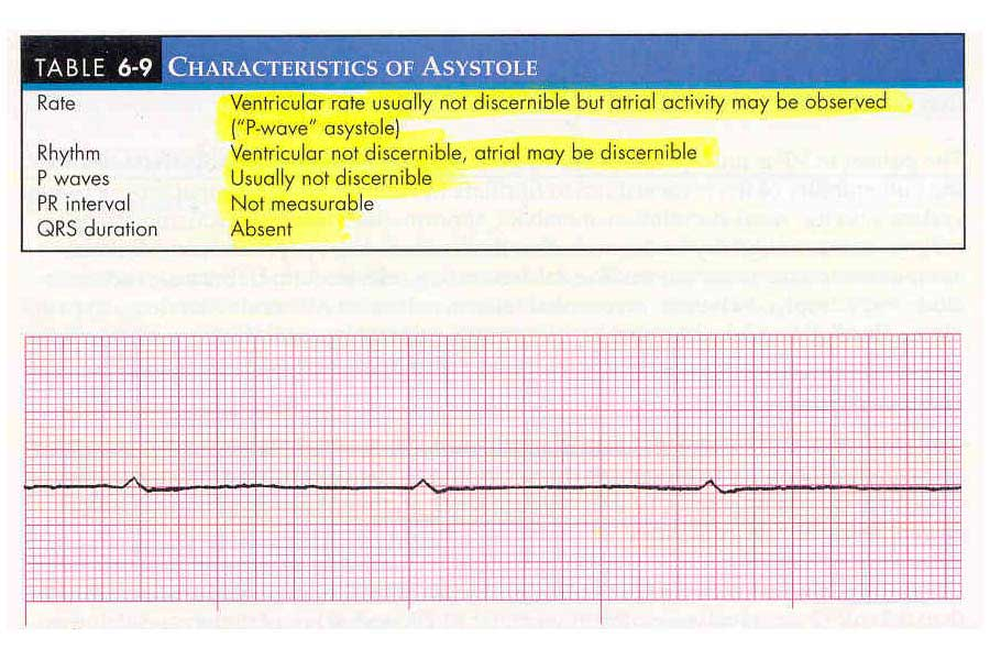 P Wave Asystole Causes and Clinical